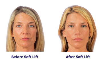 Soft lift before and after pictures of young woman