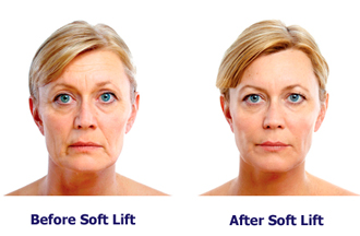 Soft lift before and after picture of older beautiful woman